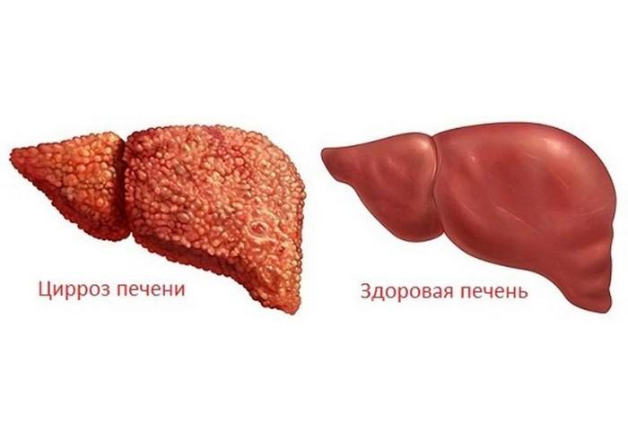 Перечень заболеваний печени
