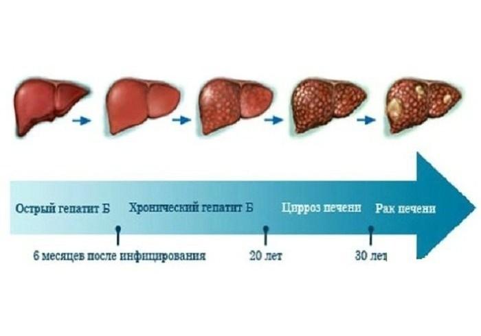 Причины возникновения заболеваний печени
