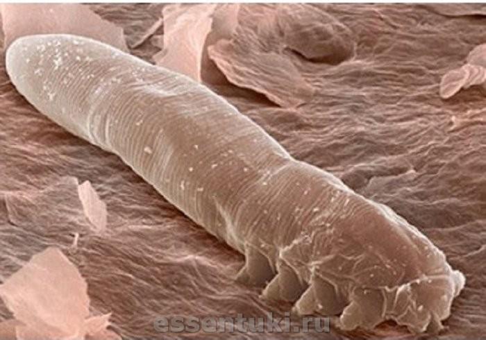 Лечение псориаза, кожных заболеваний в дерматологических ...