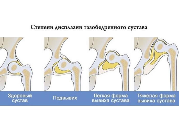 Дисплазия сустава бедра